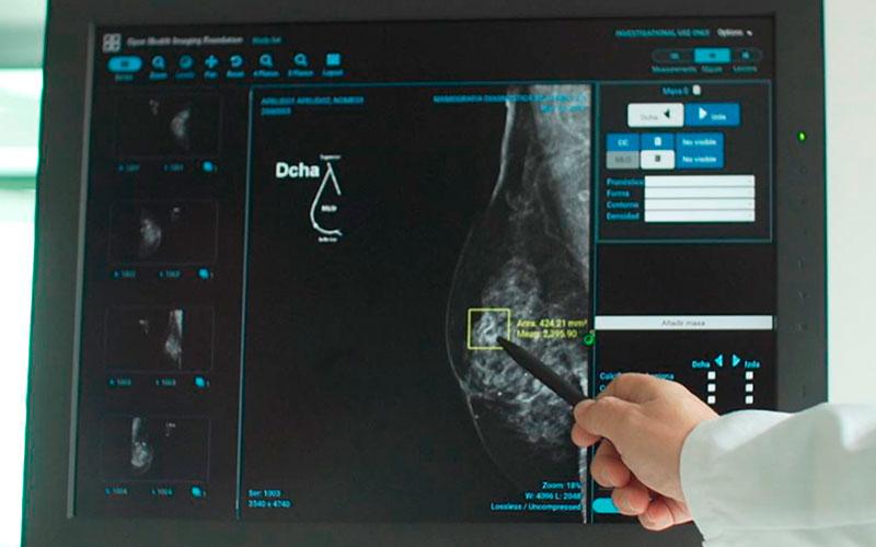 Vicomtech e Inycom desarrollan un sistema de ayuda en el diagnóstico del cáncer de mama